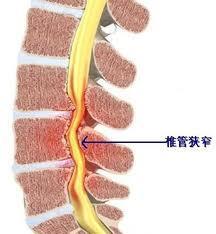 专业可靠的治疗软组织运动损伤疾病推荐 背部肌筋膜炎