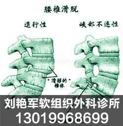劉艷軍組織外科診所_專業盤錦腰椎病治療機構 痔瘡治療