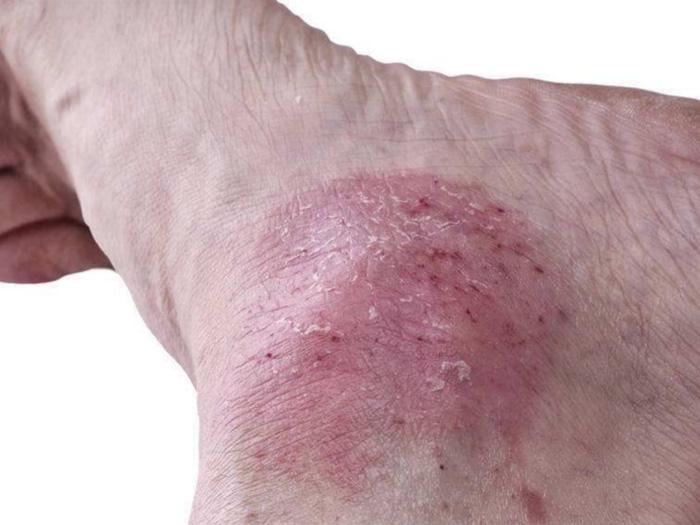 如何預防皮膚病|皮膚病治療當選小官莊衛生所