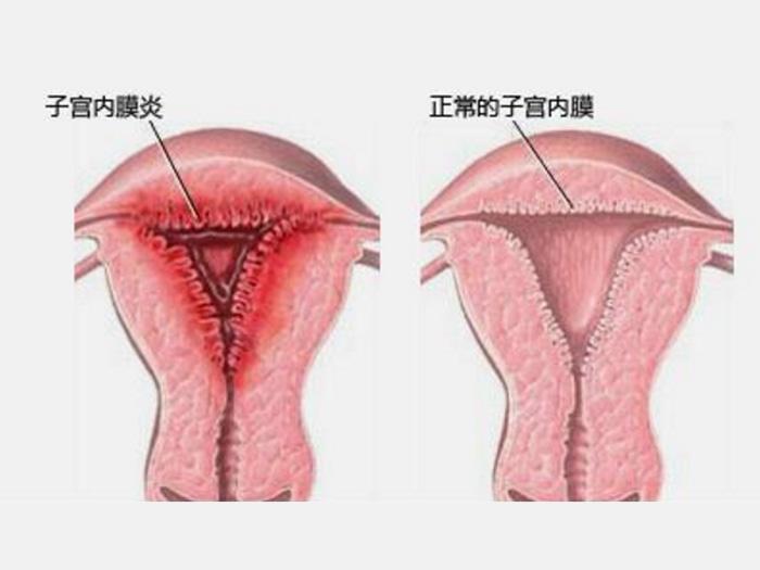 专家解答——输卵管阻塞不孕专科,弥河镇小官庄,郭太伟中医