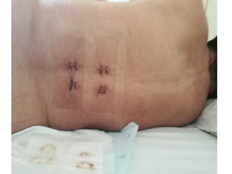 胸椎压缩性骨折