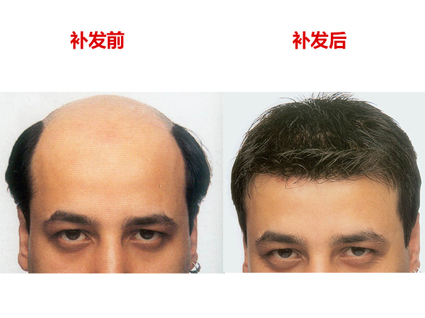 石家庄时尚假发【活发】假发织发/男士假发定制/女式时尚假发