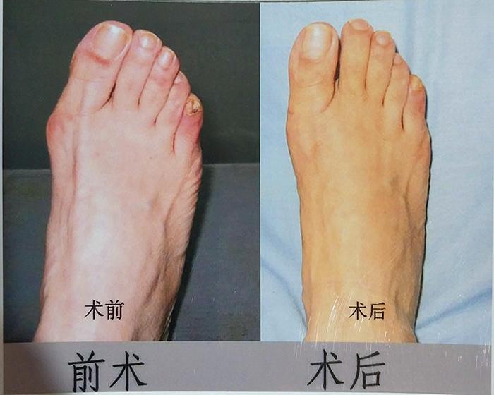沈陽拇外翻治張德懷工作室,專業沈陽大腳骨治療機構,沈陽大腳骨