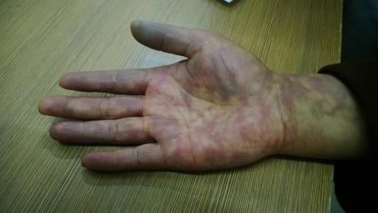 鞍山滑膜炎及骨质增生专科就找齐氏软组织诊所,专业诊治足跟痛