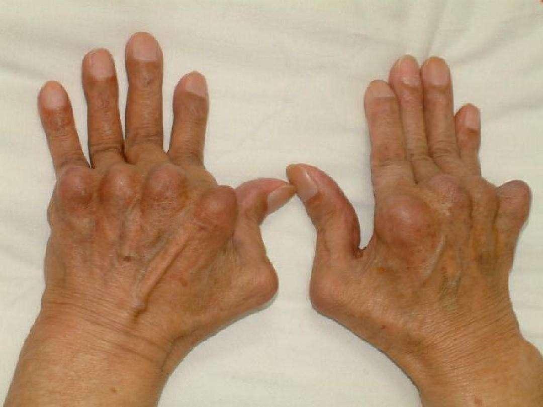 沈阳痛风治疗哪家好,沈阳乳腺增生及静脉曲张就找齐氏软组织