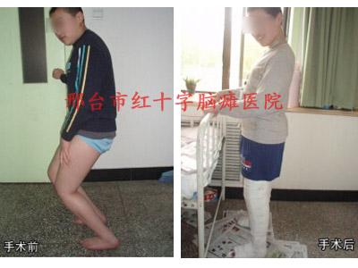 两腿不等长矫正