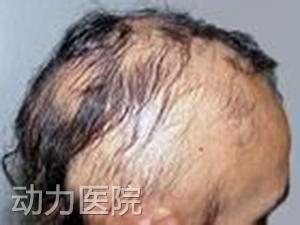 石家庄长安区治疗脱发的医院