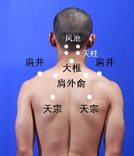颈椎病按摩理疗-山东专业的推荐_颈椎病按摩理疗