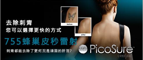 上海蜂巢皮秒哪家好-本地的皮秒推荐