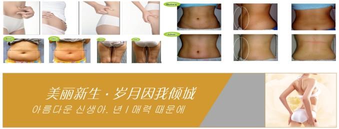 广州博梦颜贸易提供超好的抽脂仪——美容院减肥仪器