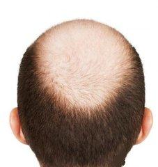 价格划算的毛囊炎性脱发与哪些病区别-专业的毛囊炎性脱发的诱发因素治疗推荐