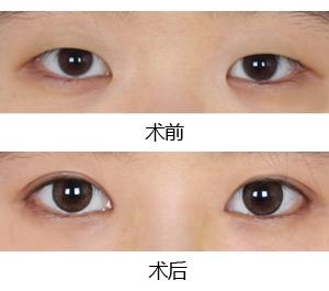 新乡获嘉拉双眼皮,有品质的做双眼皮