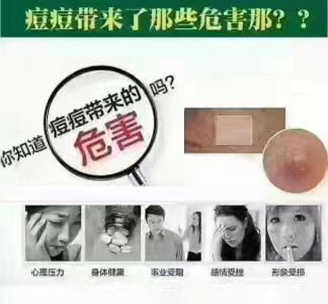 什么祛痘产品比较好哪里找——祛痘价格