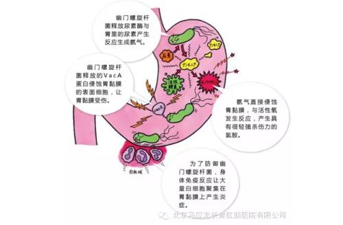 胃溃疡-陕西周到的肠胃病治疗