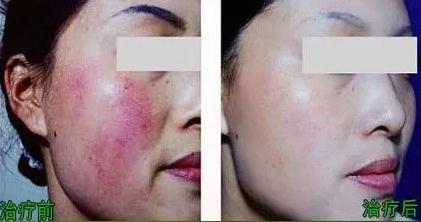 治疗大脸红血丝