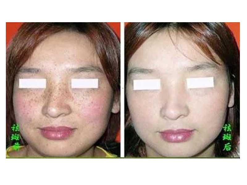 服务周到的毛孔粗大-恒毅祛斑供应有口碑的面部毛孔粗大治疗