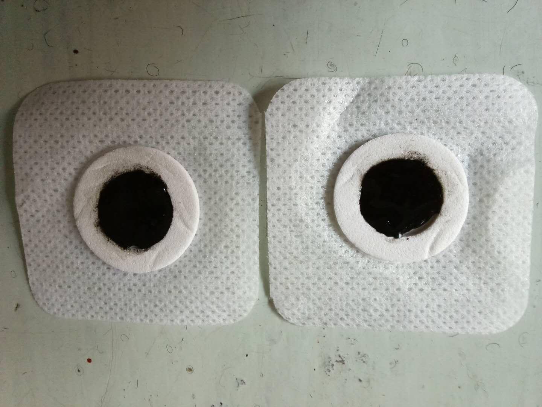 青州哪里可以轻松治疗顽固性咽炎//不用打针吃药治疗咽炎