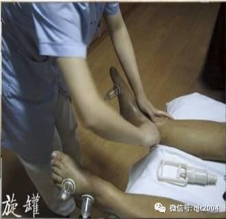 北京市拔罐培训在哪里 预约拔罐培训