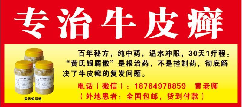 黄氏秘方药_专业乌红消白酊供应商,临沂牛皮癣治疗哪家好