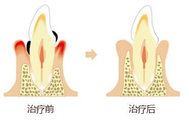 牙周病需要 吗,山西 的基础牙科服务推荐