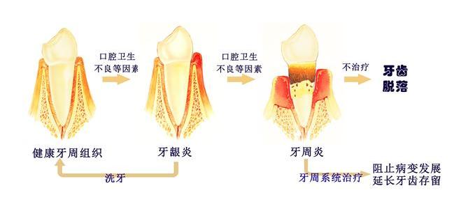 安全的牙齿正畸服务推荐,微创拔牙