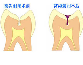 山西专业靠谱的牙齿修复服务——牙齿缺失修复