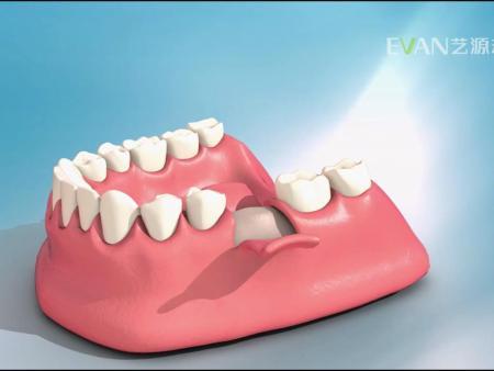 艺源动画提供有品质的医疗产品展示,医疗动画热线电话
