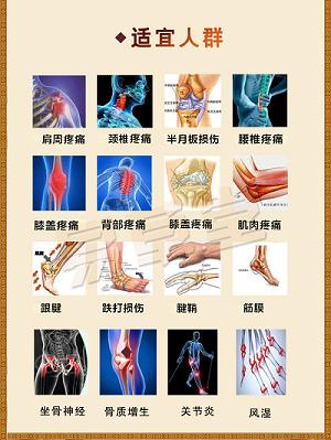 有效的膝关节滑膜炎膏药-供应保定性价比高的腰椎骨质增生膏药