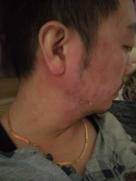 皮肤管理_皮肤管理哪家好_韩国皮肤管理