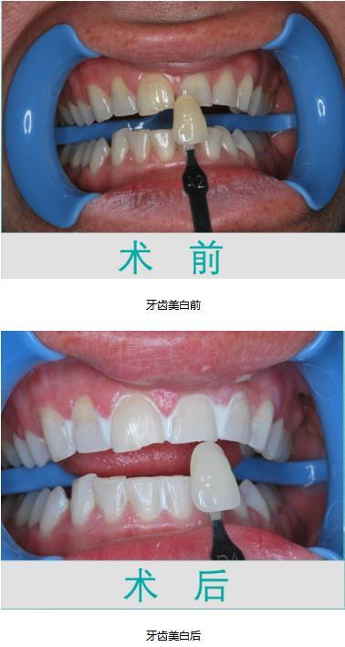 高档的牙齿美白 哪里有提供全套牙齿美白
