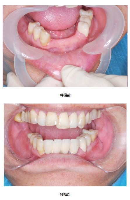 优良的牙齿美白推荐-种植之后注意事项