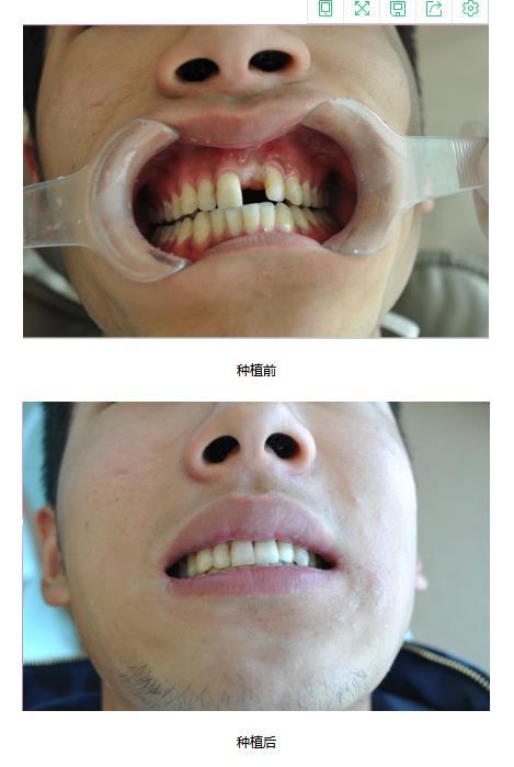 牙齿美白费用价格|牙齿美白平台