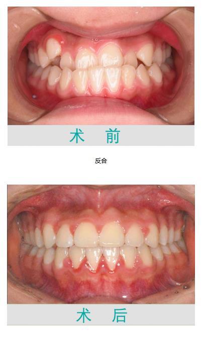 虎牙不好看-安全的牙齿矫正推荐