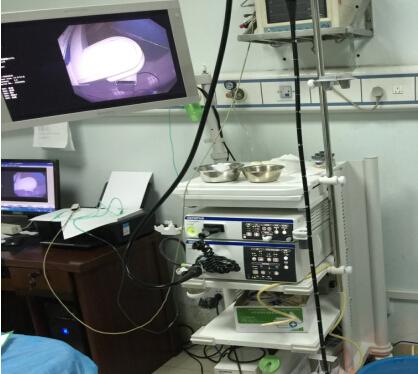 日本奥林巴斯CV290电子胃肠镜系统高端大气——实惠的日本奥林巴斯CV290电子胃肠镜系统,徐州恒大电子倾力推荐