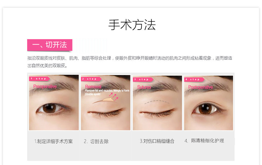 四川专业的泸州整形陈清做双眼皮推荐|泸州双眼皮如何
