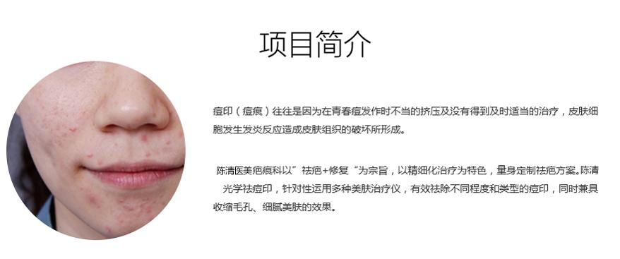专业的治疗痘印,就到泸州陈清医学美容,如何选择水光针