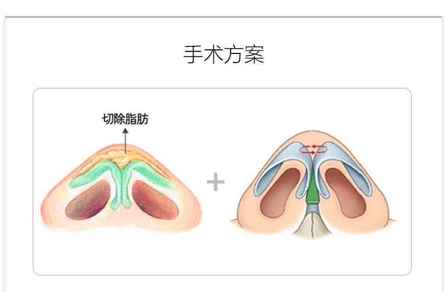 鼻头肥大手术信息-四川口碑好的泸州整形