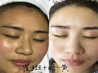 鹤壁祛斑祛痘加盟哪家好_祛斑祛痘加盟选郑州美泰化妆品