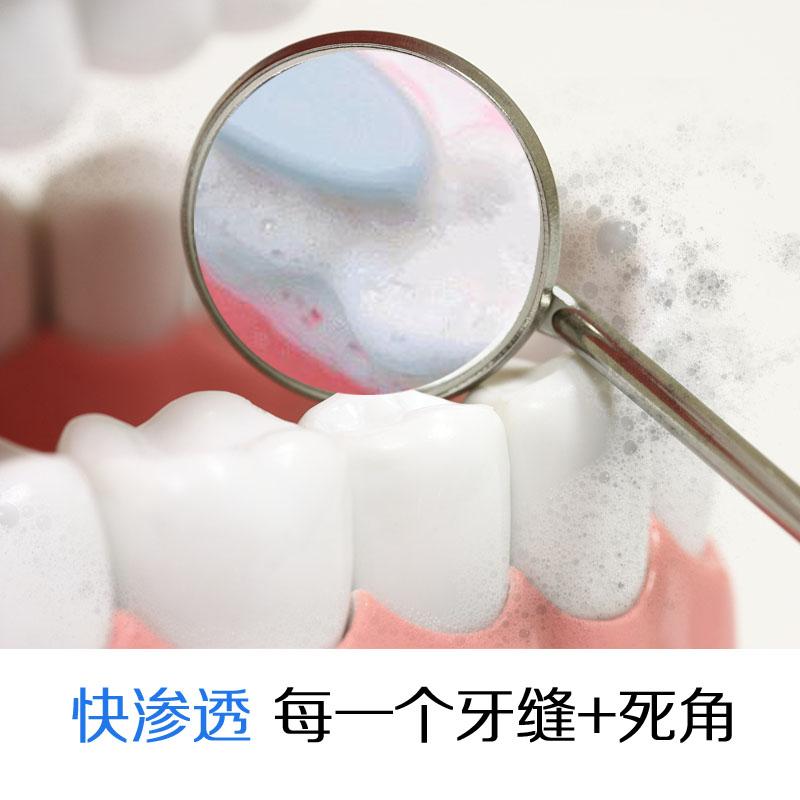 有了蛀牙怎么办护牙宝儿童口腔护理慕斯泡沫慕斯给您保护