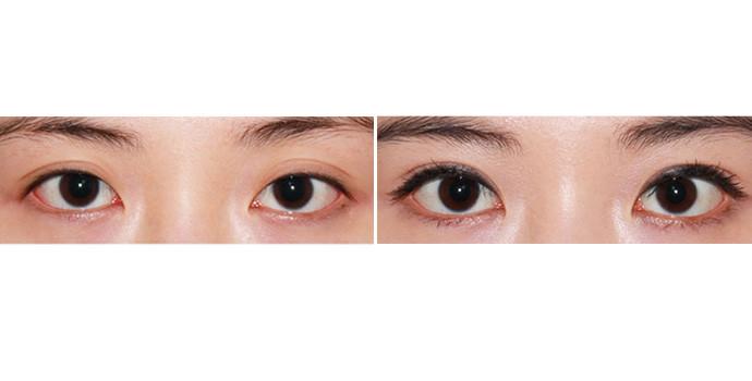 有品质的陈清开外眼角手术,就到泸州陈清医学?#24266;輡一级的开外眼角手术