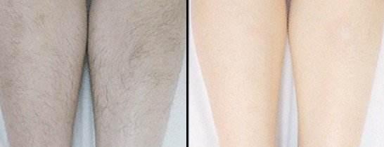 服务周到的陈清腿部脱毛?#33805;鯻正规的腿部脱毛