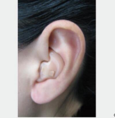 启敏E320助听器