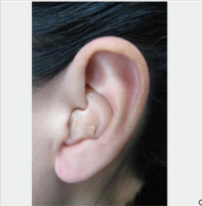 启敏B220助听器