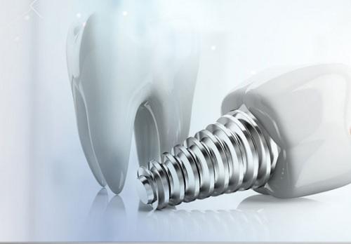 牙科种植体专业制造商-种植体