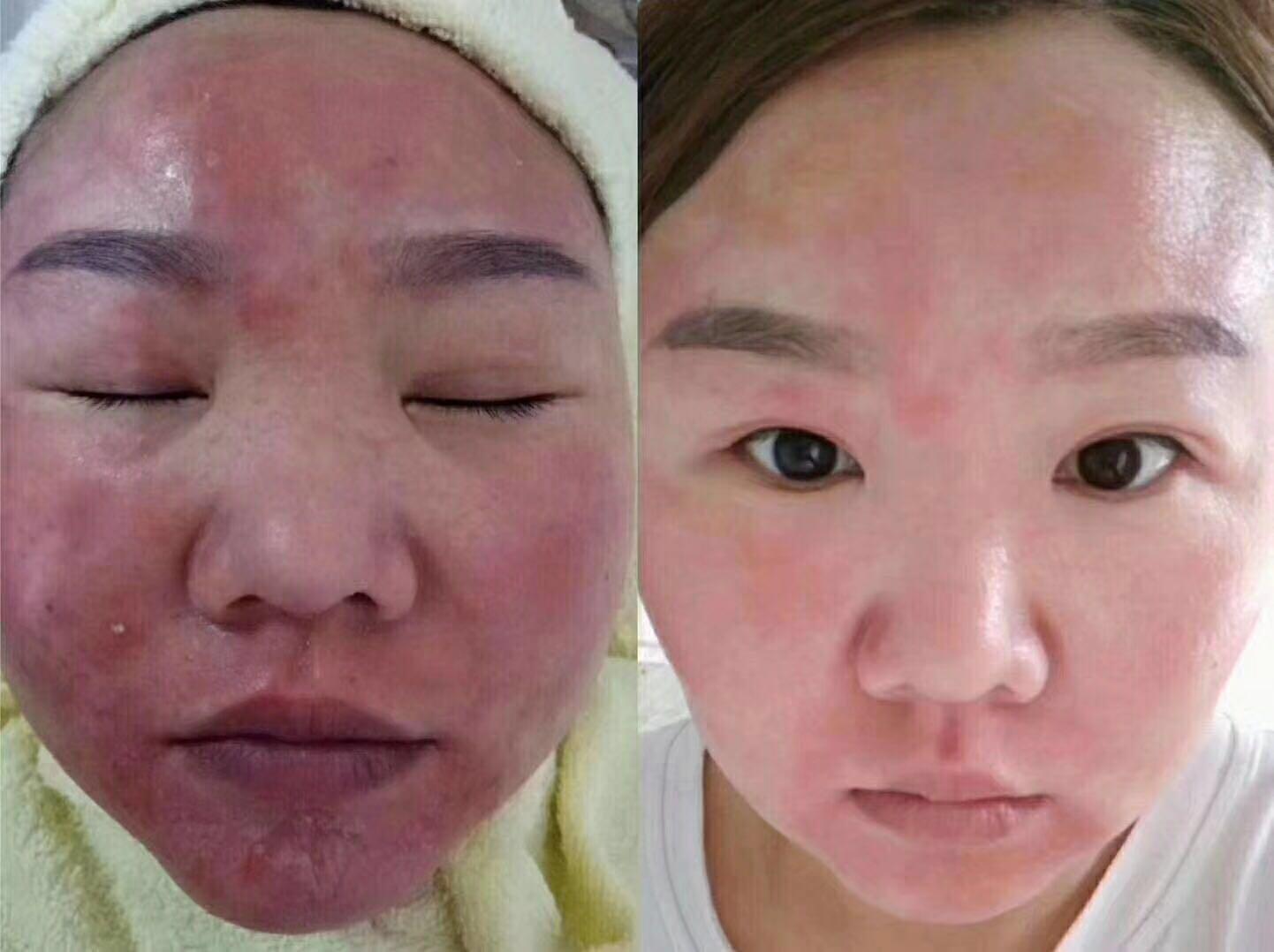 河东专业祛斑祛痘 专业的祛斑公司推荐