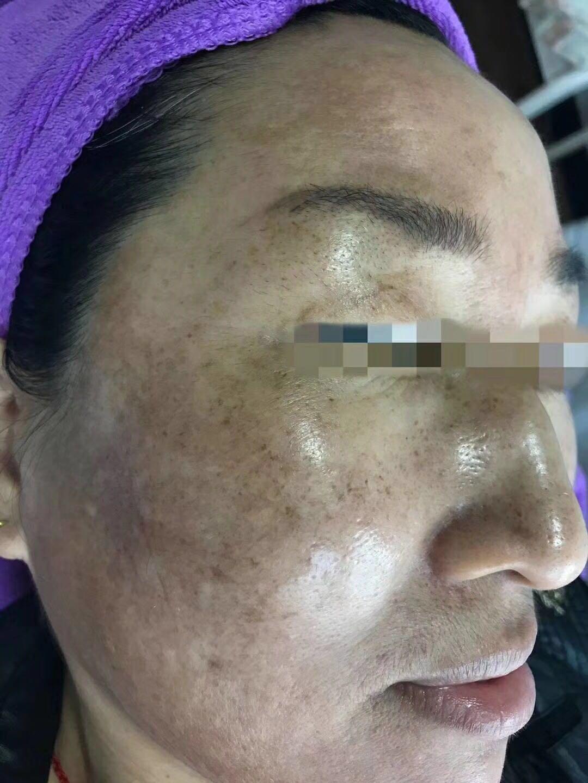 碟颜美容美体服务中心专业供应快速去斑产品|山东祛痘加盟