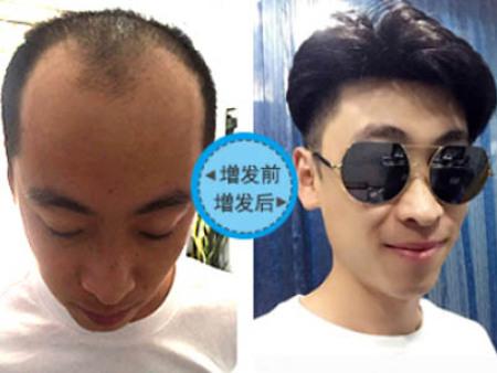 青丝源发制品提供高性价假发,惠州哪家假发店优先服务化疗患者