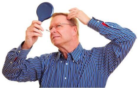 防脱生发治疗哪里找,山东专业防脱生发