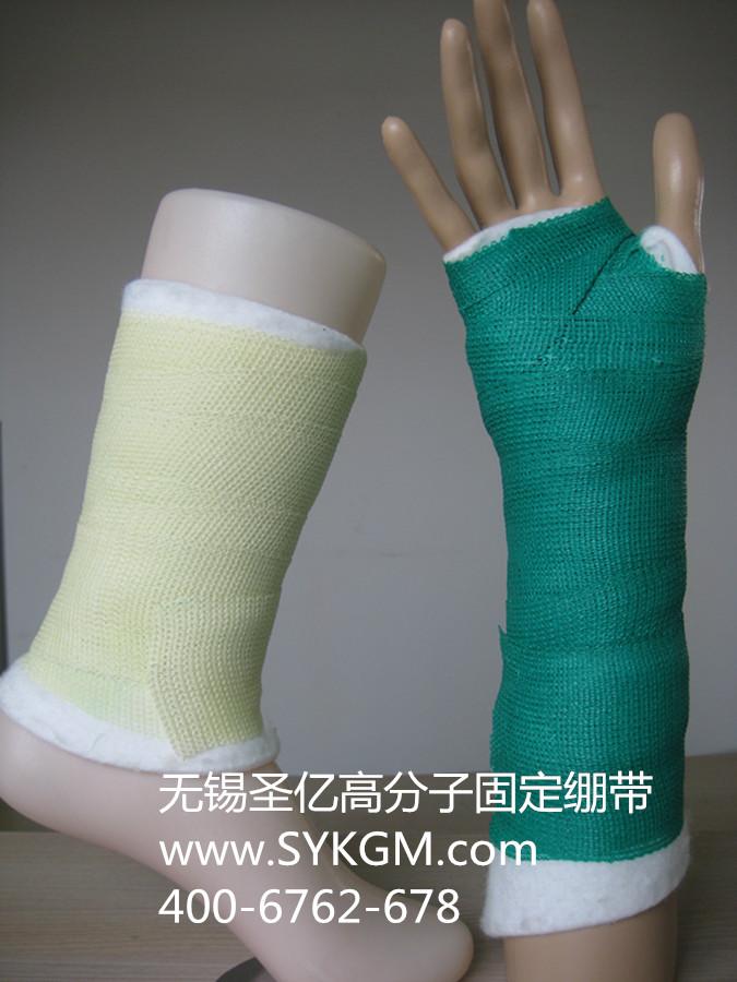 手臂骨折-品牌好的SCP34高分子固定绷带在哪买