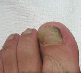 韦一夫提供专业的韦一夫脚患修治-足部怎样护理